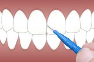 estetica dental mallorca